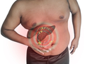 Fatty liver in an obese man