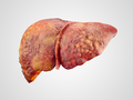 Cirrhosis is an irreversible condition.  In extreme cases, it leads to death